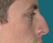 Dr. Elliott Rhinoplasty or Nose Surgery photos
