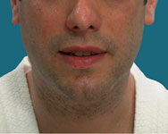 post liposuction of the face and neck