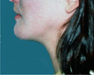 post surgery liposuction of the neck and face