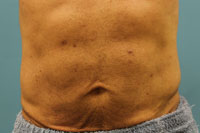 Mini Abdominoplasty Results