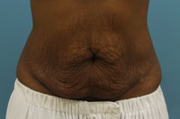Abdominoplasty / Tummy Tuck atlanta ga