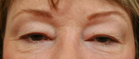 eyelid surgery in Atlanta, GA