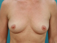 Dr. Allyson Maske - Breast Augmentation