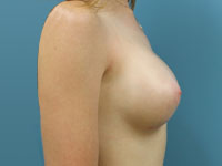 side view breast augmentation post op