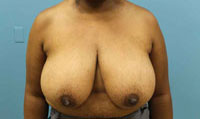 breast reduction atlanta plastic surgery