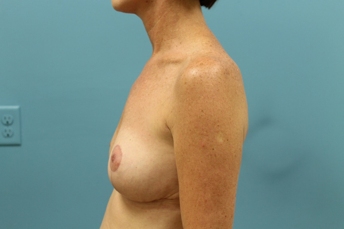 Dr. Allyson Maske - Breast Reduction photo