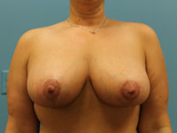 dr maske breast reduction patient