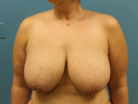 breast reduction pre operation