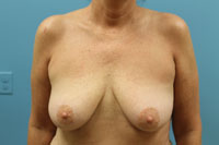 Mastopexy with Implants