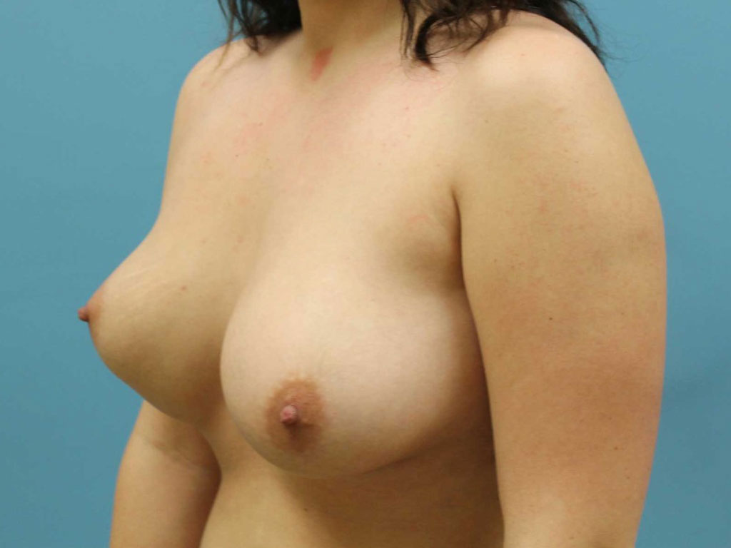 Atlanta Breast Lift