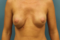 Breast Reconstruction Patient #1