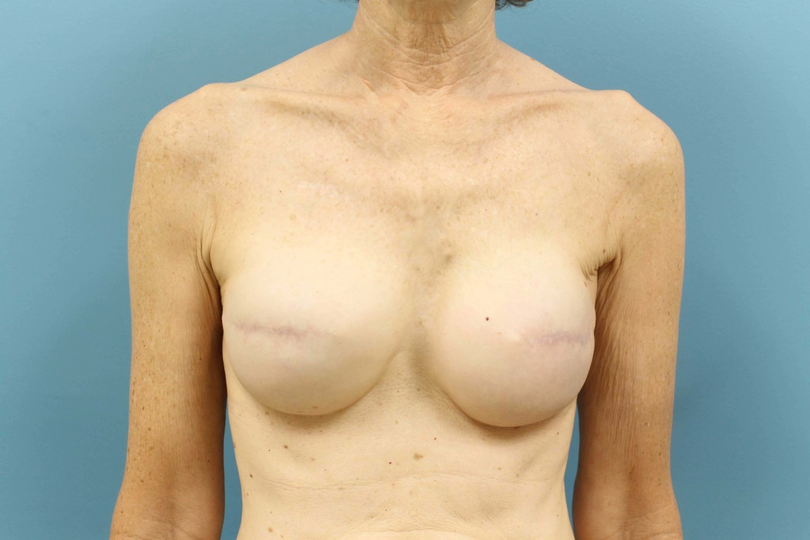 after breast recon with tissue expander