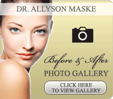 Dr. Maske Photo gallery of before and after plastic surgery photos
