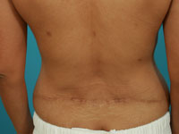 liposuction after photos atlanta