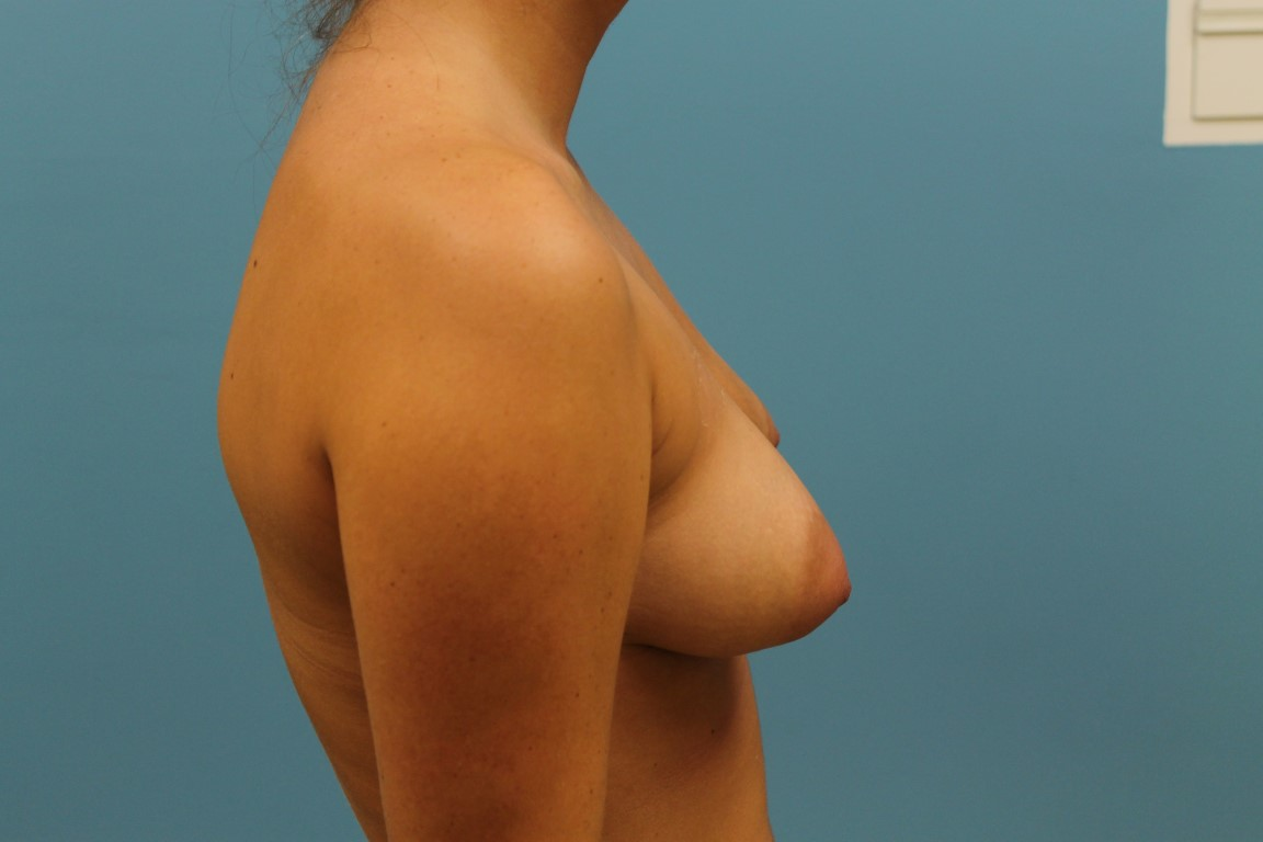 Breast Lift (Mastopexy) with Implants Results
