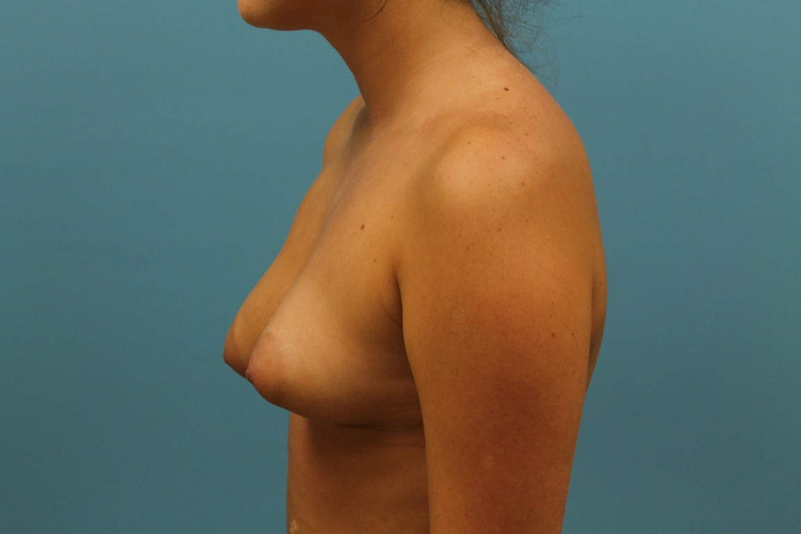 mastopexy with polands surgery