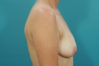 breast reconstruction surgery before and after photos