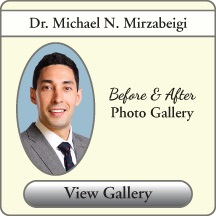 Dr. Michael Mirzabeigi's photo gallery of Before & After Cosmetic and Reconstructive Photos
