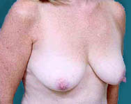 Latissimus Breast Reconstruction with Implants