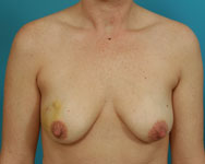 latissimus breast reconstruction with implant