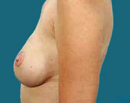 Latissimus Breast Reconstruction Results