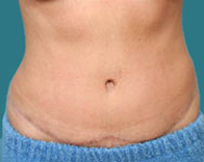 tummy tuck surgery atlanta