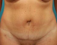post abdominoplasty