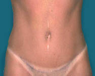 Dr. Jim Namnoum abdominoplasty photo