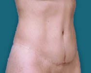 Abdominoplasty in Atlanta GA