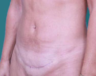 post op abdominoplasty