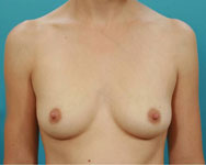 pre breast augmentation atlanta ga