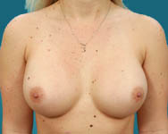 Breast Augmentation in Atlanta GA