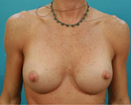 post reviseion and breast augmentation
