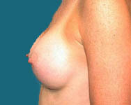 Dr. Namnoum breast augmentation photo