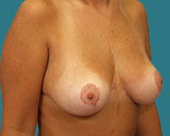 namnoums breast reduction patient