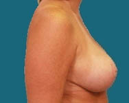 Dr. Namnoum breast reduction photo