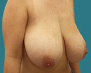 breast reduction namnoum patient