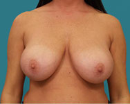pre breast reduction patient