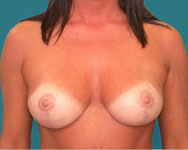 post breast reduction patient