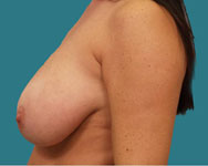 breast reduction patient profile view