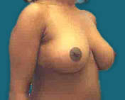 atlanta Breast Reduction