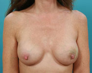 breast recon with implants