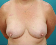 post breast recon with expanders and implants