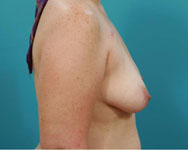 profile view of breast recon using expanders