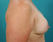 breast recon patient after breast reconstructive surgery