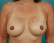 Breast Reconstruction with Tissue Expander Results