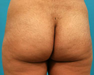 Buttock Augmentation atlanta ga