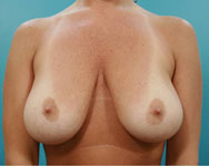 Mastopexy (Breast Lift) Atlanta GA