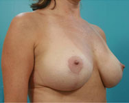 mastopexy surgery patients post surgery