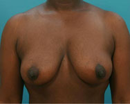 post mastopexy surgery patient